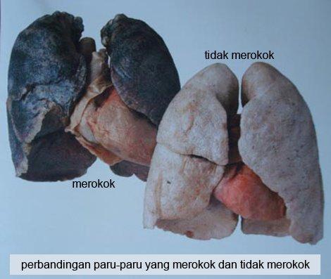 paru sehat dan paru perokok