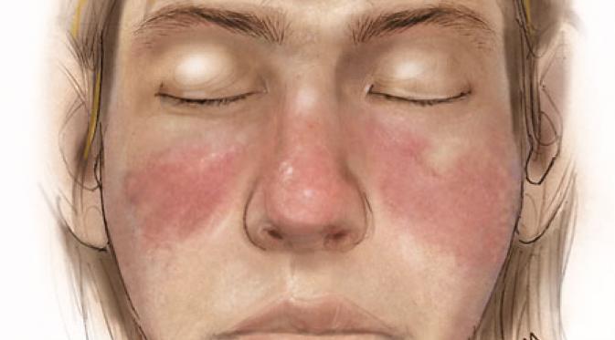 Apakah Lupus Menimbulkan Rasa Gatal Galena