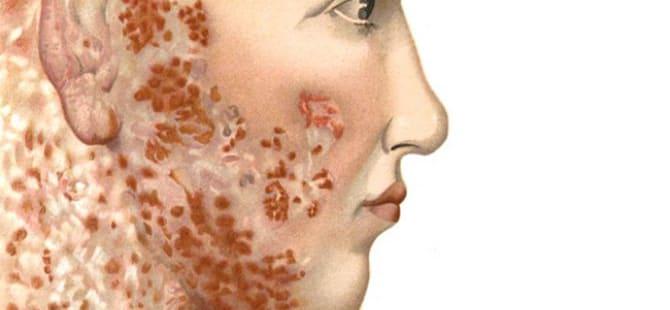 cara menyembuhkan lupus