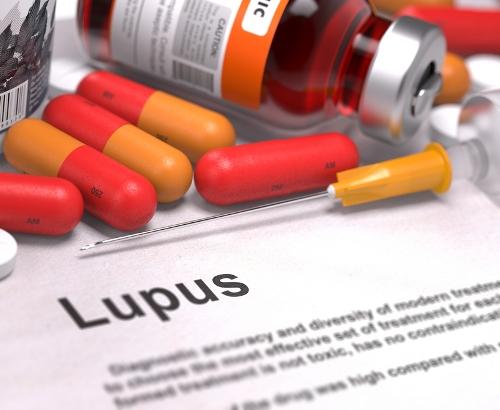 pengobatan lupus