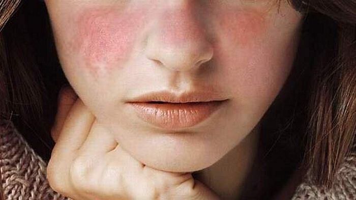 cara menangani lupus