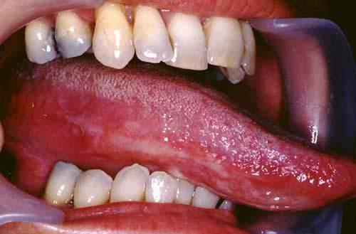 Penyakit Oral Lichen Planus