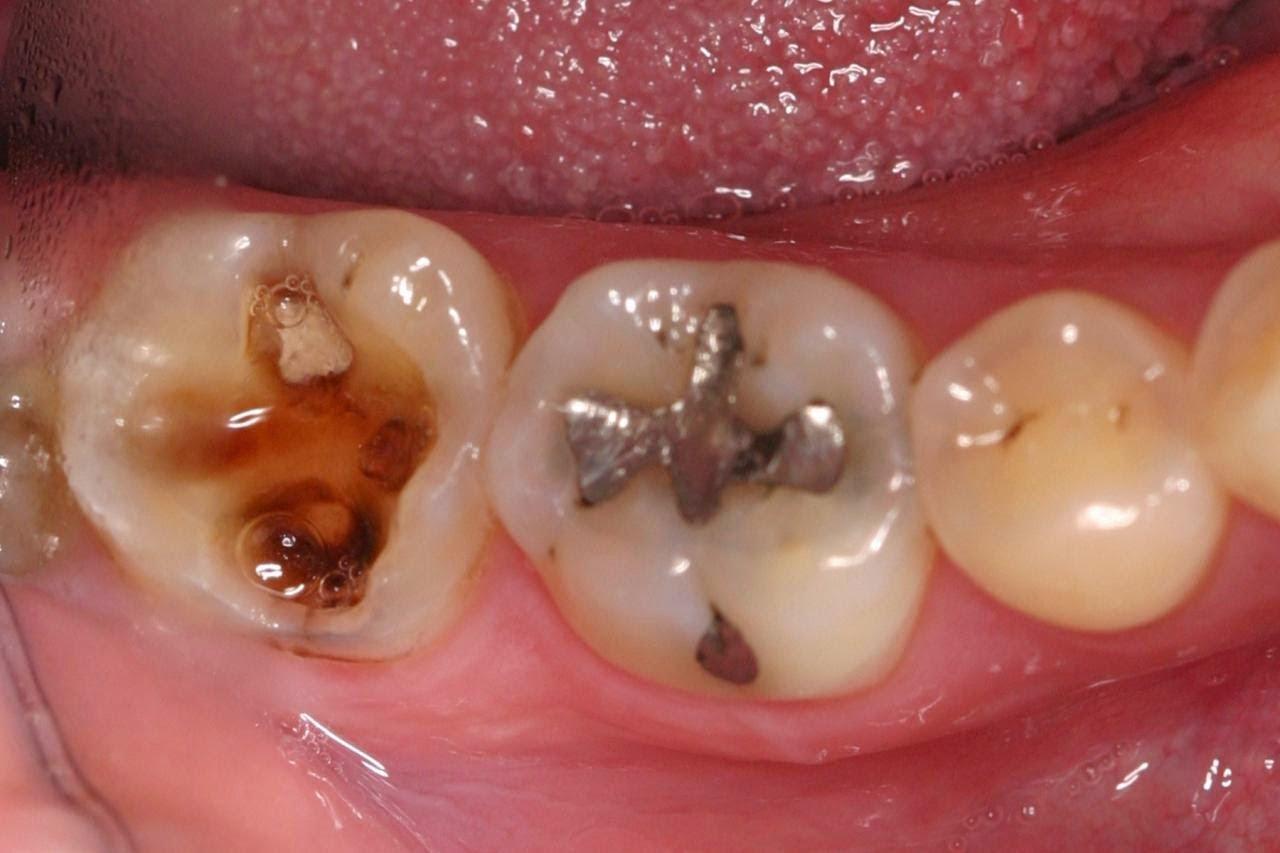 Obat Sakit Gigi Apakah Yang Terbaik Galena