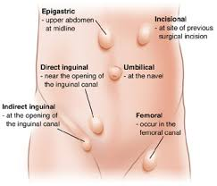 Image result for inguinal hernia images