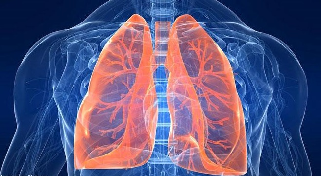 pneumonia 6