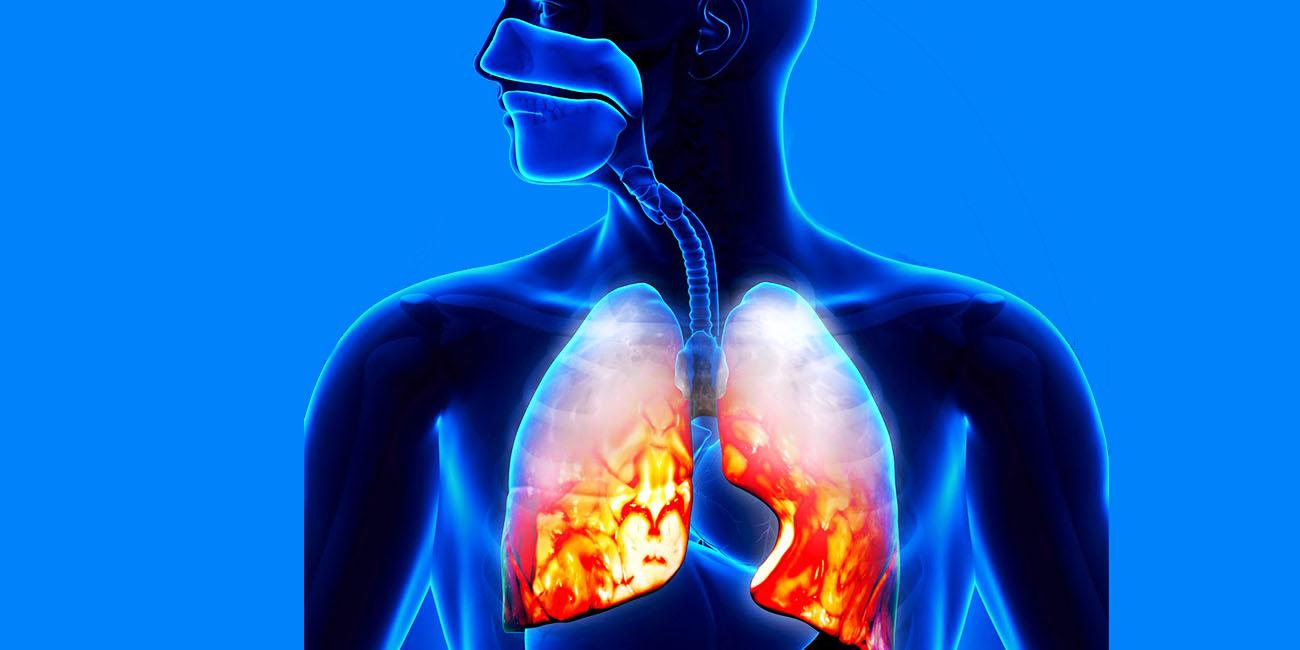 Rokok vape bisa mengakibatkan pneumonia