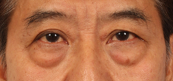Inilah 5 Penyebab Kantong Mata Hitam Selain Kurang Tidur