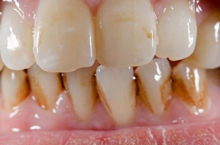 Tar pada rokok bisa menyebabkan gigi kuning