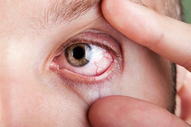 iritasi mata