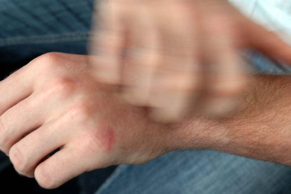 galena menggaruk luka