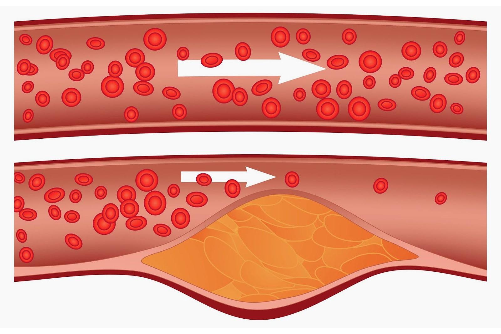 Pembuluh darah menyempit akibat kolesterol