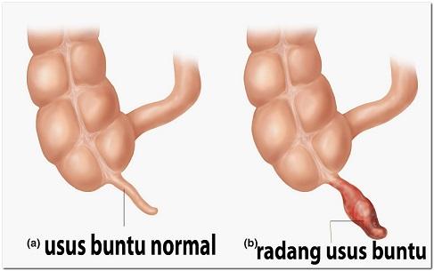 Prbandingan usus buntu normal dan yang mengalami peradangan