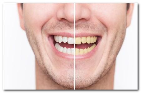 Bagaimana Caranya Supaya Gigi Saya Tidak Menguning Saat Meminum Kopi